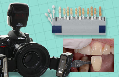 Dental Shade Photography Basics: Introduction