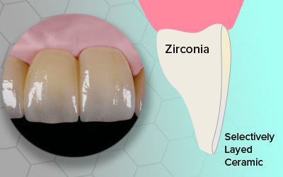 Micro Layered Zirconia Crowns (MLZ)
