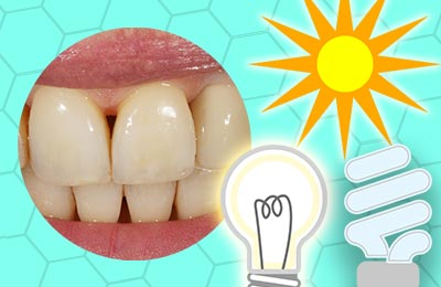 Dental Shade Photography Basics: Metamerism