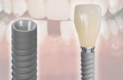 3.0 mm Dental Implants: A great option for limited space, but not without limitations